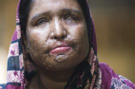 Woman forced to remarry husband who threw acid on her face after she divorced him for being unfaithful.