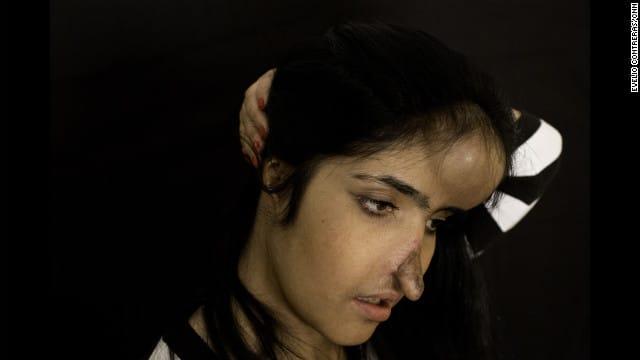 Aesha Mohammadzai