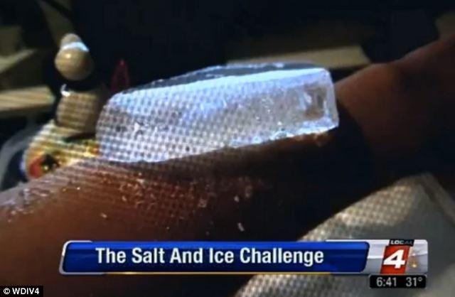 Salt and ice burn challenge
