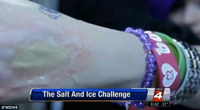 Salt and ice burn challenge