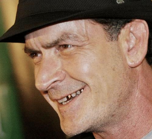 Charlie Sheen crack teeth