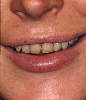 Lindsay Lohan crack teeth.