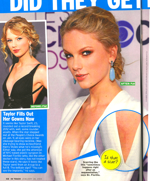 Taylor Swift breast implant