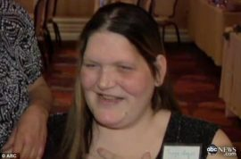 Woman who couldn't stop growing dies at age 34.