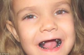 Shocking! Dentist puts silver crowns on every one of 4 year old's teeth.