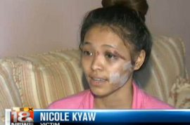 Aspiring Kentucky model has face slashed whilst mall bystanders do nothing. Assailants still not arrested.