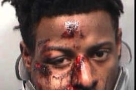 Atlanta police officer shot in the face by victim who has his face inexplicable smashed to a pulp.