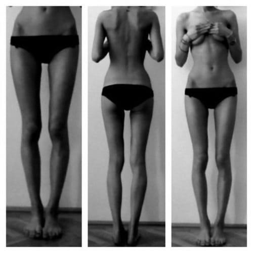 the thigh gap