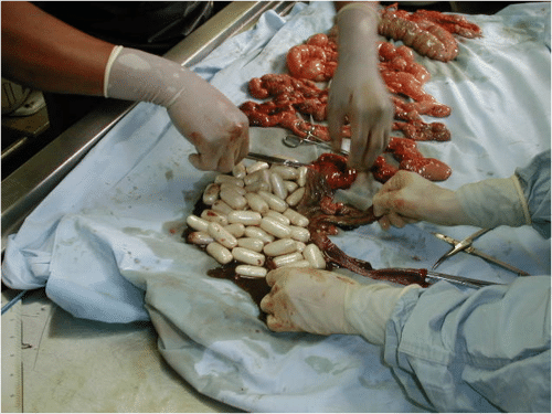 Drug smuggler autopsy