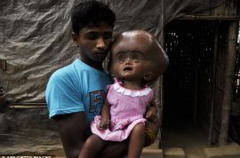 Roona Begum the 18 month old baby who is set to die because she is too poor.