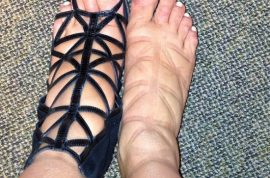Kim Kardashian's swollen feet disgust at Met Ball.