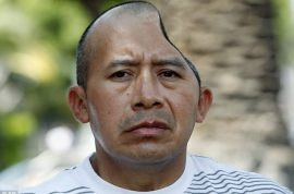 Antonio Lopez Chaj awarded $58 million after bouncer smashes half of his skull away.
