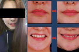 The rise of the perma-smile, new trend out of South Korea.