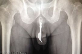 Here is a 70 year old man with kitchen fork stuck in his penis.