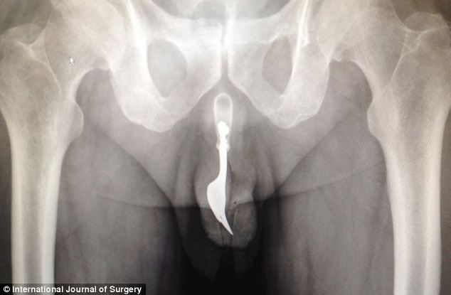 70 year old man with kitchen fork stuck in his penis