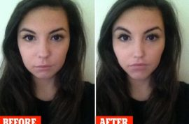 Plastic surgery apps let you see before and after results. But are they dangerous?