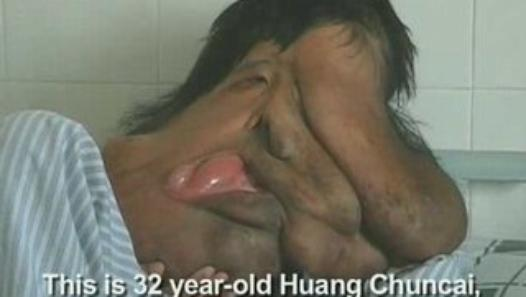 China's Elephant man