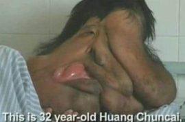 Huang Chuncai, China's Elephant man gets Christmas surgery.