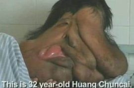 Huang Chuncai, China's Elephant man gets Christmas surgery.