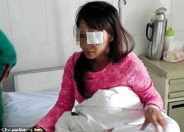 Husband gouges out Chinese woman's eyes