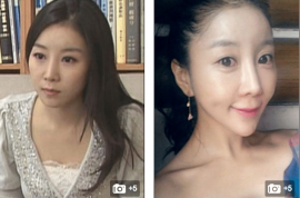 South Korean reporter shocks nation with drastic jaw surgery. Did she ruin her face?