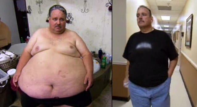 Chuck Turner weight loss surgery