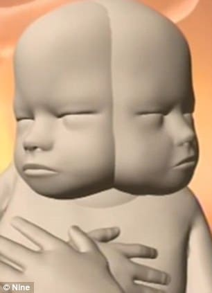 Parents refuse to abort baby with two faces