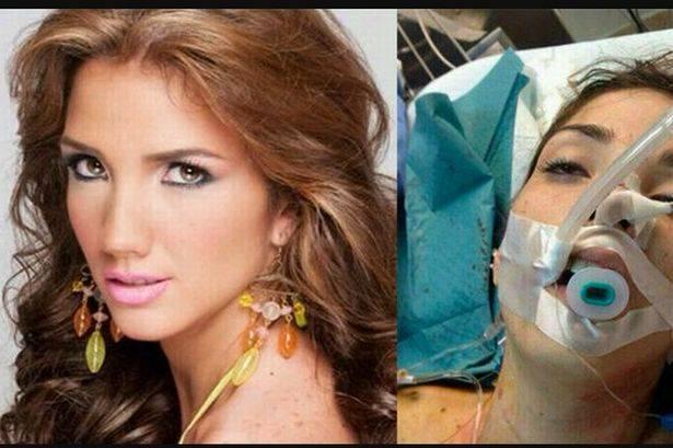 Venezuelan beauty queen Genesis Carmona dead