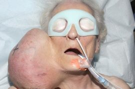 Joyce Haigh, 79 year old woman has tumor the size of a football removed from face.