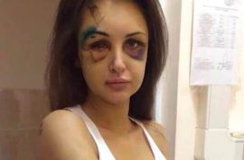 Pavel Ushanov, Russian millionaire on the run after beating his model girlfriend beyond recognition.