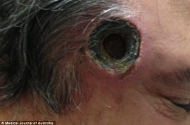 Black salve ointment leaves inch wide hole in Aussie man's head.