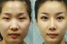 Plastic surgery in South Korea that you need a new passport. Western eyes…