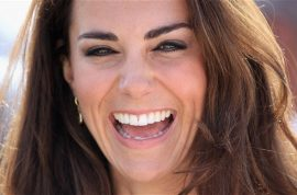 Women are having dimple surgery to get the Kate Midddleton smile.