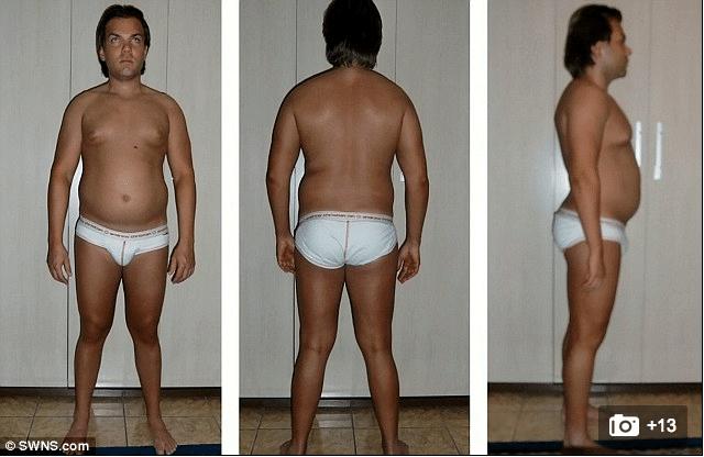 Rodrigo Alves plastic surgery