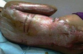 Filipino maid suffers horrific burns after Saudi boss throws boiling water at her