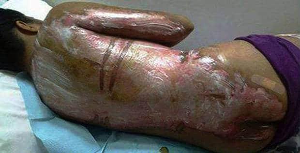 Filipino maid suffers burns after Saudi boss throws boiling water