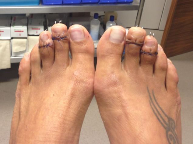 Cinderella surgery