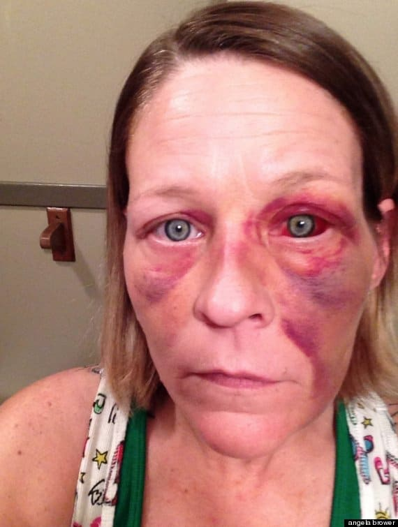 Angela Brower, victim of domestic violence posts selfies