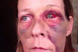 Angela Brower, victim of domestic violence posts selfies on Facebook