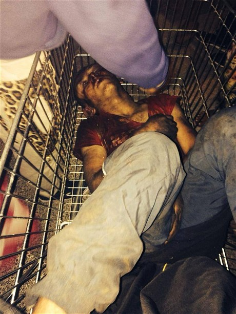 Roma teenager beaten and left for dead in shopping trolley