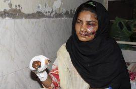 Saba Maqsood, Pakistani girl survives honor killing after marrying man she loved