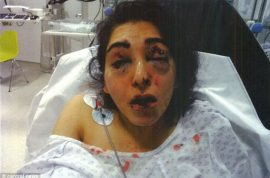 Jageer Mirgind, British Sikh woman blinded by father in law after affair allegation