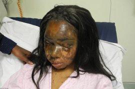 Naomi Oni, acid attack survivor starts dating again.