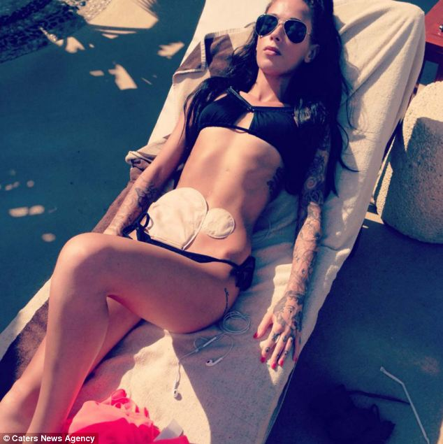 bikini photo of Bethany Townsend with colostomy bag