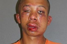 Father beats Raymond Frolander for molesting his son before calling cops