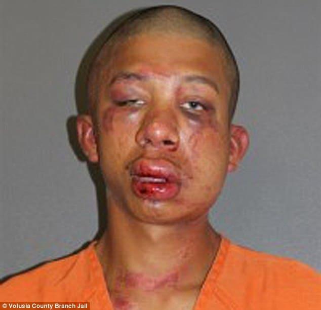 Raymond Frolander beat down
