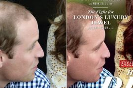 Vanity Fair accused of photoshopping Prince William's thinning hair.