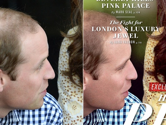 Vanity Fair photoshops Prince William's thinning hair