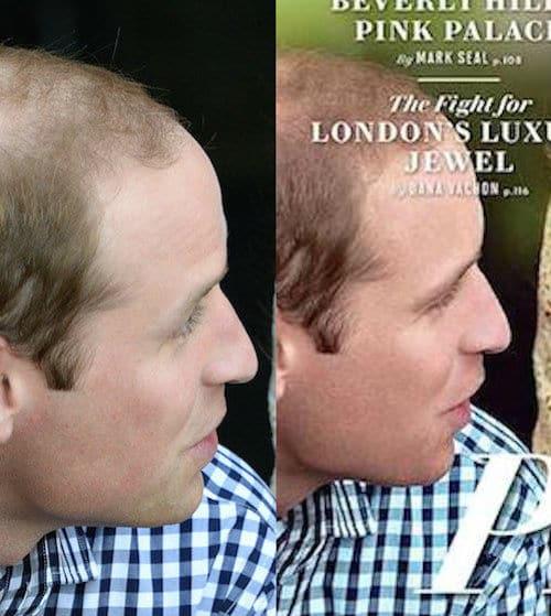 Vanity Fair photoshops Prince William's thinning hair