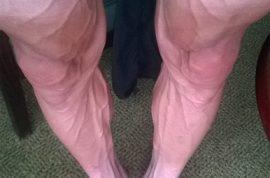 Is Bartosz Huzarski, Polish bike rider on steroids? Twitter explodes